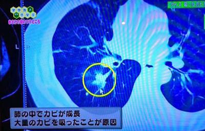 肺の中のカビ