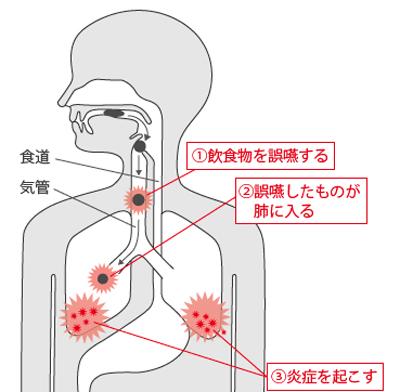 誤飲と肺炎